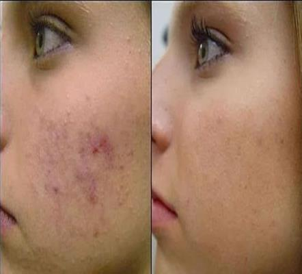 Home-Remedies-for-Acne-Scars-Removal-Naturally