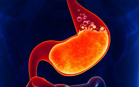 acidity in Stomach