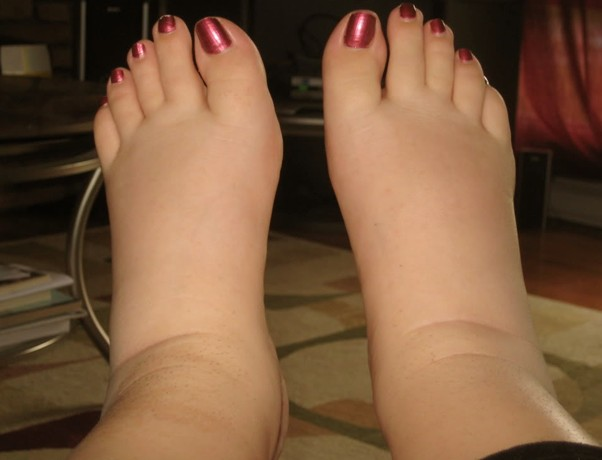 Swelling in the feet