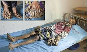 Bangladesh's 'Tree Man' is All Set for Surgery 3