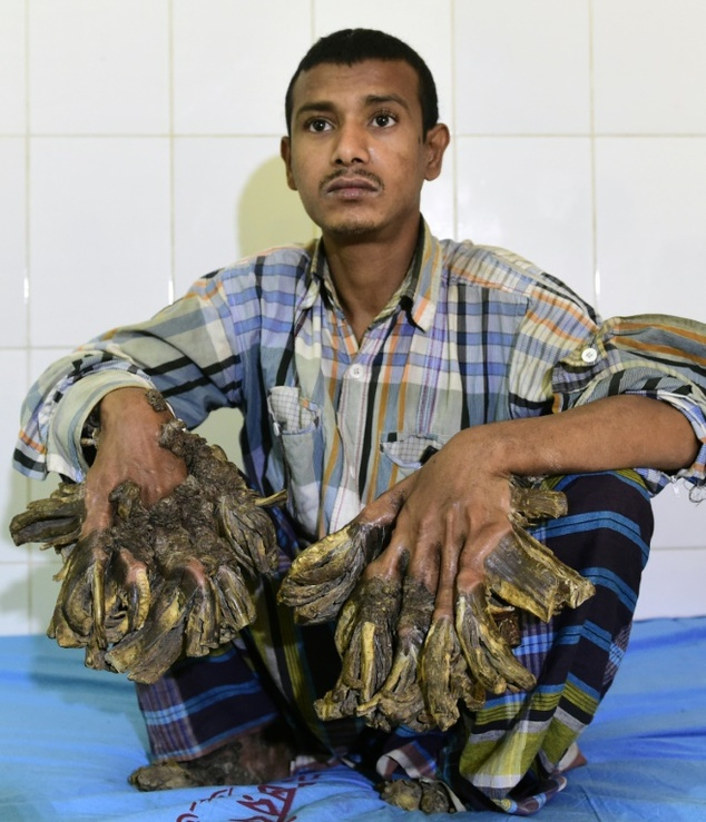 Bangladesh's 'Tree Man' is All Set for Surgery